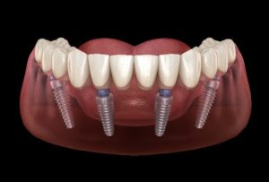 Implant-supported bridges & crowns