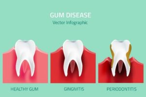 Gum inflammation treatment