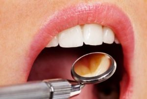 Periodontal treatment in Sudbury