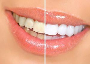 Sudbury teeth whitening